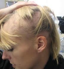 Movehs - Alopecia Androgenetica